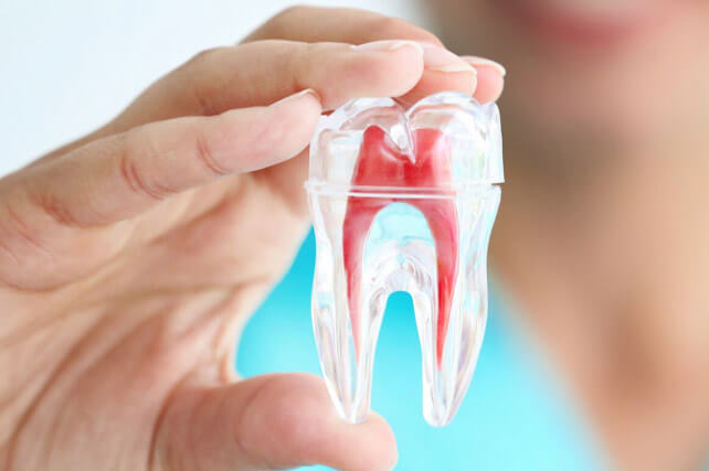 Root Canal Treatment in Dwarka