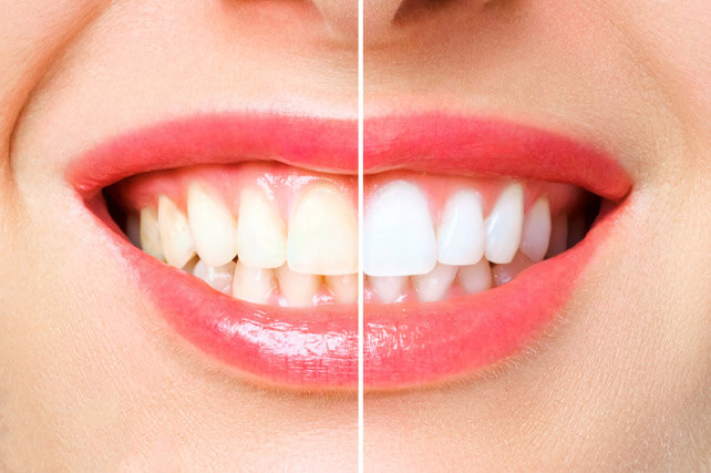 Teeth Whitening in Dwarka
