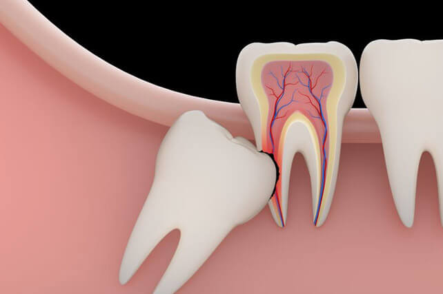 Wisdom Tooth Removal in Dwarka